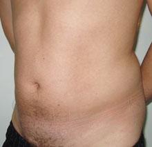 жир под мышцами живота